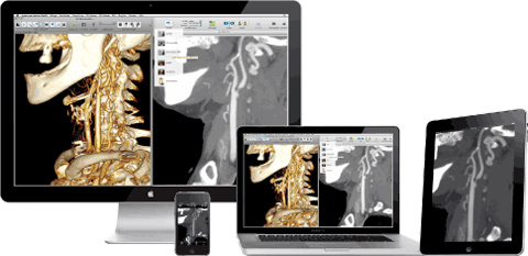 teleradiology ipad app